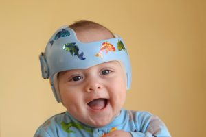 Cranial Technologies, plagiocephaly, flat-head syndrome, healthcare, private equity, merger, M&A, Beecken Petty, Cortec