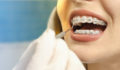 braces, dental, orthodontics
